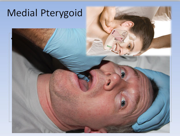 medial-pterygoid